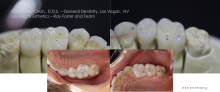 Clayton A. Chan, DDS - Las Vegas Cosmetic Dentistry Occlusion Connections 10